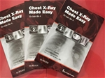 Chest X-Ray Made Easy 2017